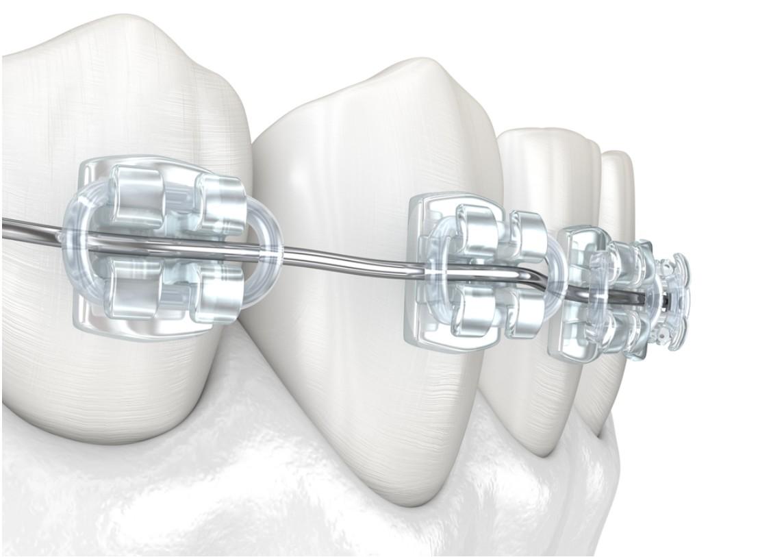 أقوى عروض تقويم الأسنان