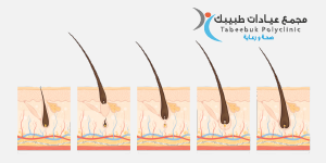تقنية الليزر لإزالة الشعر غيرمرغوب به