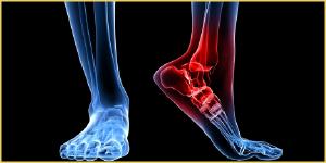 العلاج الطبيعي للتخلص من الشوكة العظمية