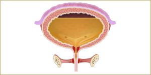أعراض وتشخيص التبول الليلي